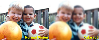 normal versus cataract vision